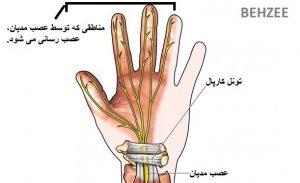 آناتومی دست، سندروم تونل کارپال