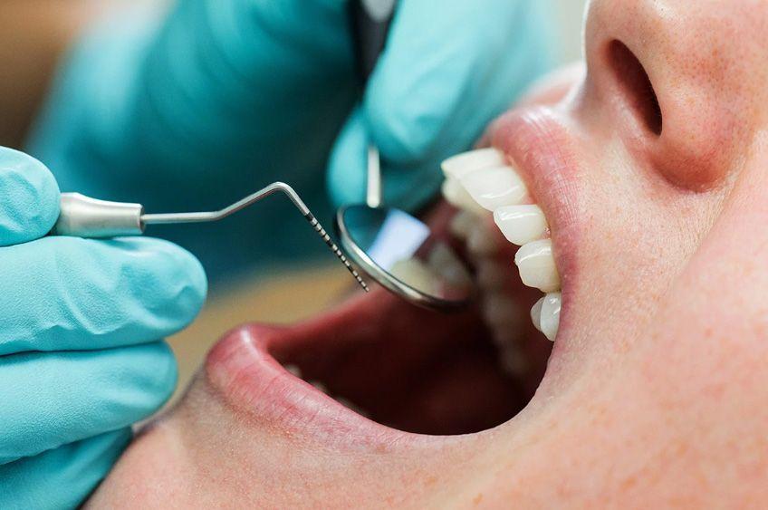 راههای پیشگیری یا درمان دنداندرد