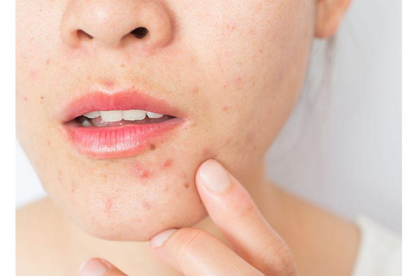 پوشیدن ماسک و ایجاد آکنه پوستی: ماسکنه چیست؟