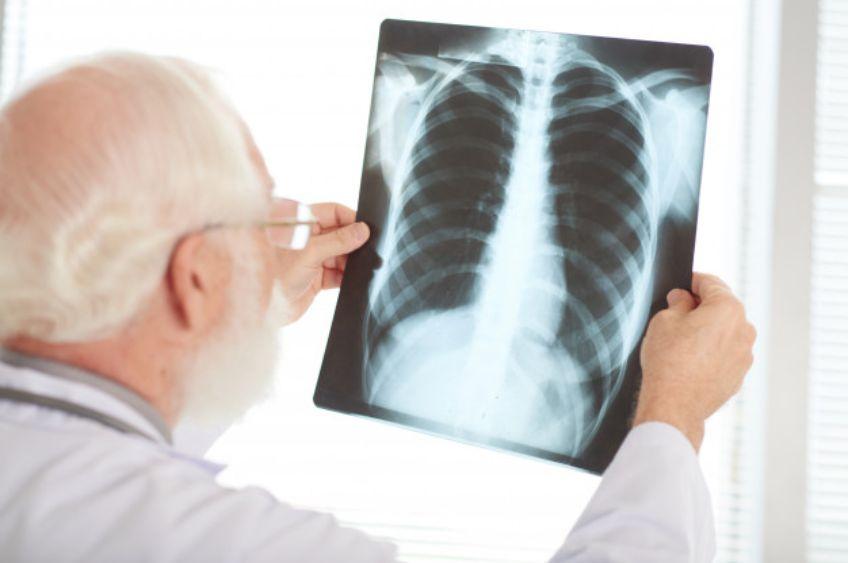 علائم عجیبی که میتواند نشانه سرطان ریه باشد