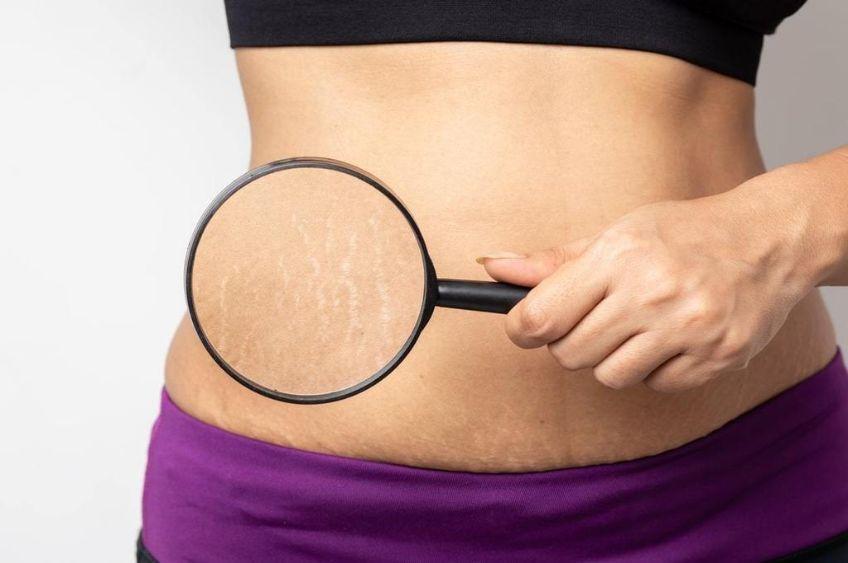 ترک پوستی: علت ایجاد ترک های پوستی و درمان آن