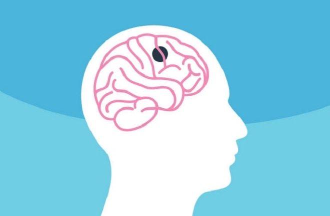 آشنایی با تومور مغزی و عوامل مؤثر در بروز آن