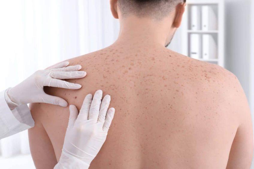 سرطان پوست: مراحل رشد آن و عوامل مؤثر در ابتلا