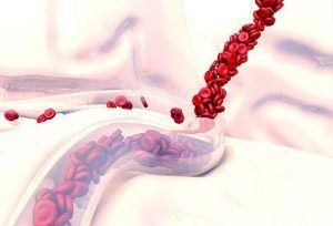 خونریزی-رگها